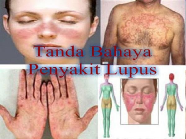 Bahaya Lupus Bagi Kesehatan Tubuh