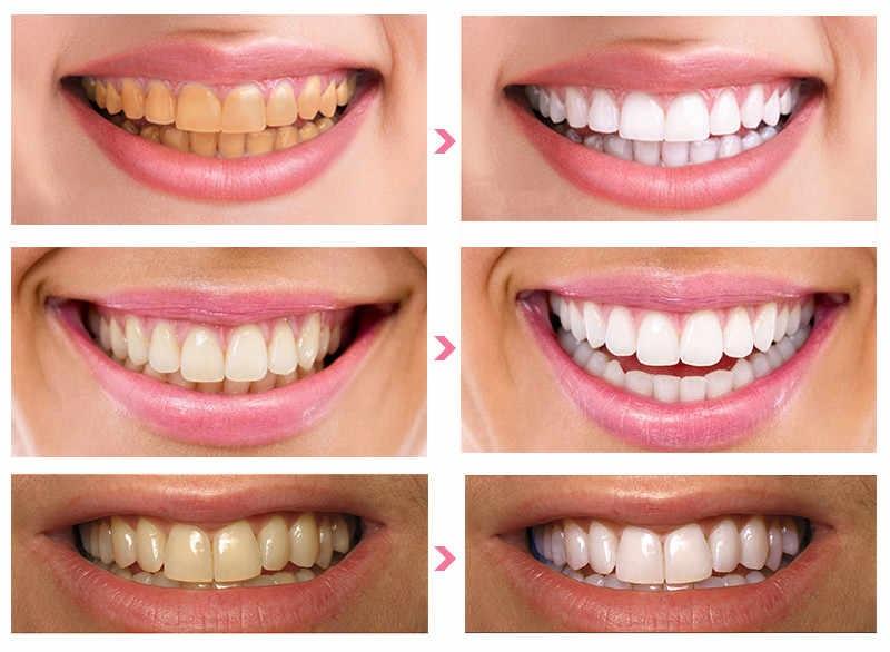 Gigi Putih Hanya Butuh Waktu 50 Menit, Lakukan Manikur Gigi